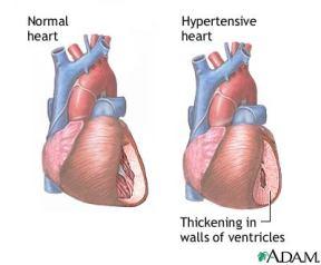 high blood pressure herbs, hypertension